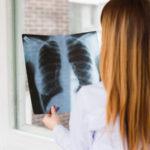Nachuntersuchung bestätigt: Keine Befunde nach Cannabisöl-gestützter Behandlung von Brust- und Beckenkrebs