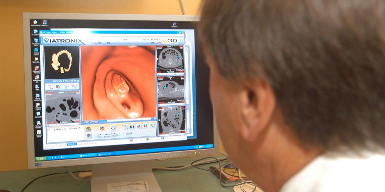 US-Internisten pldieren fr individuelles Darmkrebsscreening