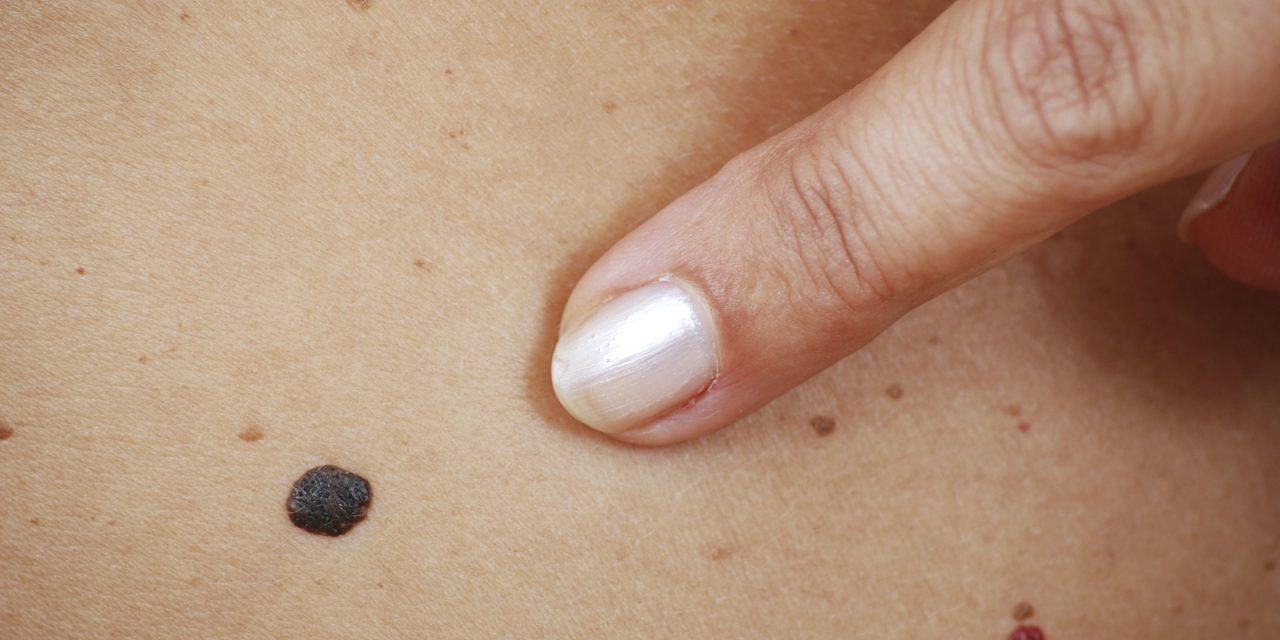Krebshilfe will vermehrt über Gefahr von Hautkrebs aufklären