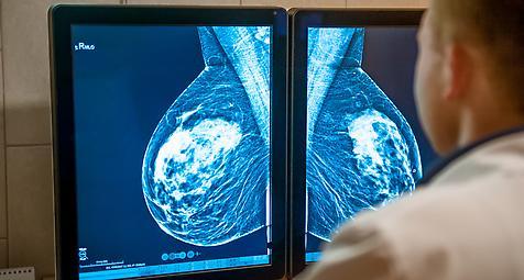 Hormonersatztherapie: Meta-Analyse bestätigt Brustkrebsrisiken