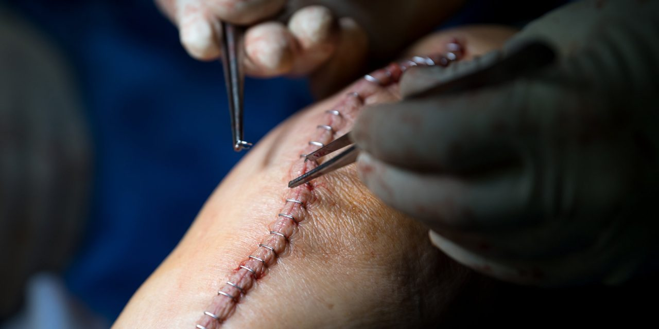 FDA sieht Sicherheitsrisiken bei chirurgischen Klammern und…