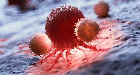 Krebs: Warnung vor steigenden Erkrankungszahlen, Kampfansage der EU