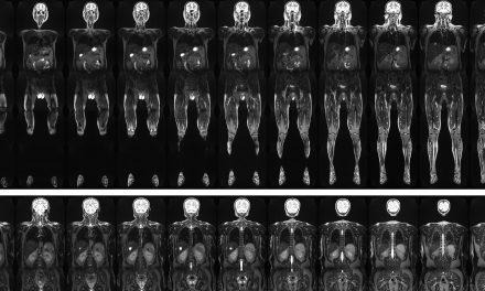 30.000 Ganzkörper-MRT-Untersuchungen in fünf Jahren