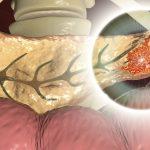 Neurotransmitter vermittelt Schmerzmittelresistenz bei Erkrankungen der Bauchspeicheldrüse