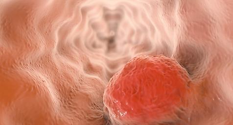 Elektronische Nase erkennt Barrett-sophagus