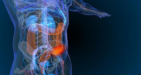 Wissenschaftler wollen Darmkrebsvorsorge verbessern