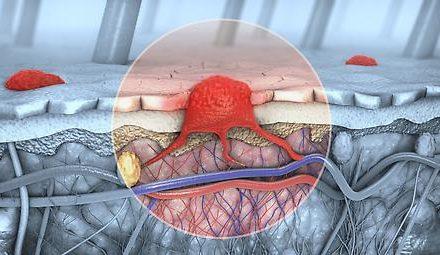 Melanomentstehung: Wissenschaftler untersuchen Nervenprotein