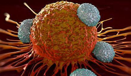 Krebs: Antibiotika können Checkpoint-Inhibitoren wirkungslos…