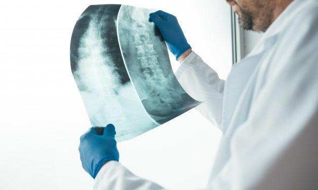 Fallbericht: Erfolgreiche Krebsbehandlung mit Cannabis-Vollextrakt (Radiologiebefund)