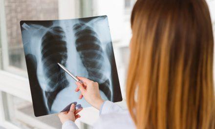 Patientenbericht: Cannabis-Vollextrakt bei metastasierendem Brustkrebs